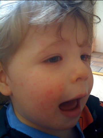 Possible Amoxicillin reaction rash on toddler
